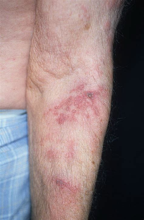 Herpes on Hands Pictures – 48 Photos & Images / illnessee